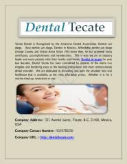 How to choose a dentist in tecate.pdf